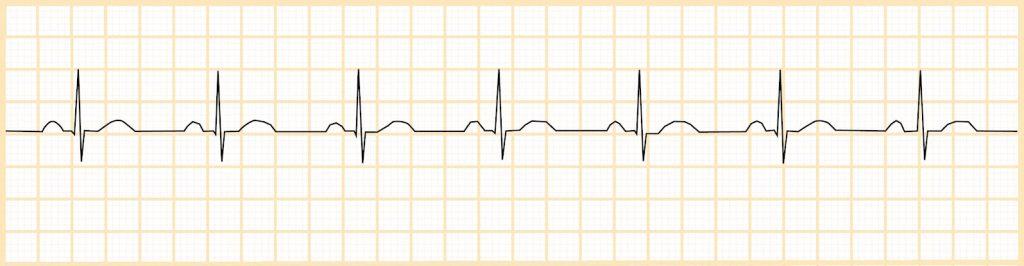 Φυσιολογικός φλεβοκομβικός ρυθμός (NSR)