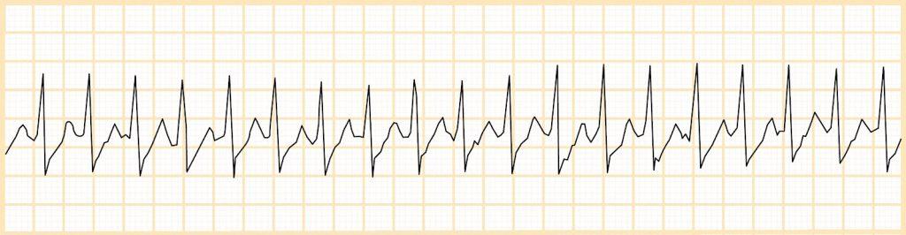 Υπερκοιλιακή ταχυκαρδία (SVT)