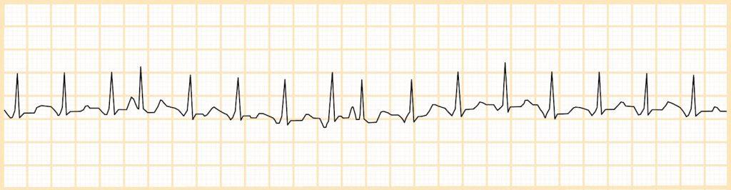 Πολυεστιακή κολπική ταχυκαρδία (MAT)