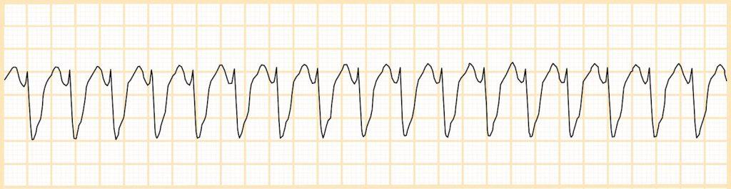 Κοιλιακή ταχυκαρδία (VT)