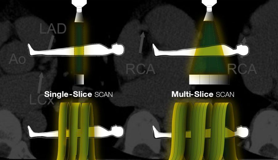 pericardium-article-axon2