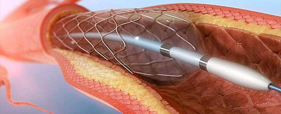 pericardium-article-coronaryangioplasty1
